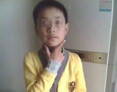 广西柳州9岁男童颈部白斑3月余门诊案例